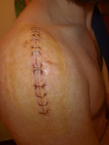 Petes 20 staples and 3 screws